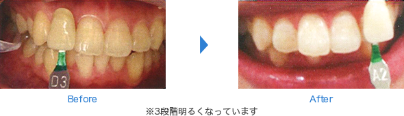 Before After ※3段階明るくなっています